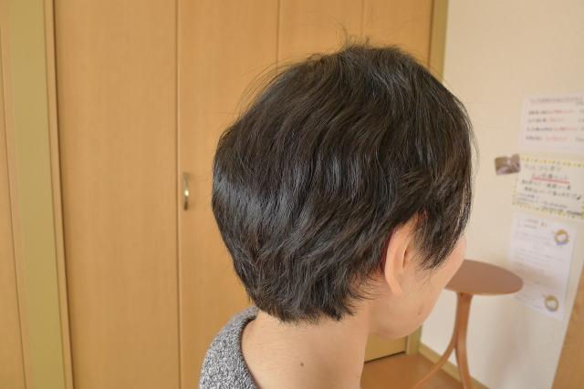 抗がん剤治療後の髪